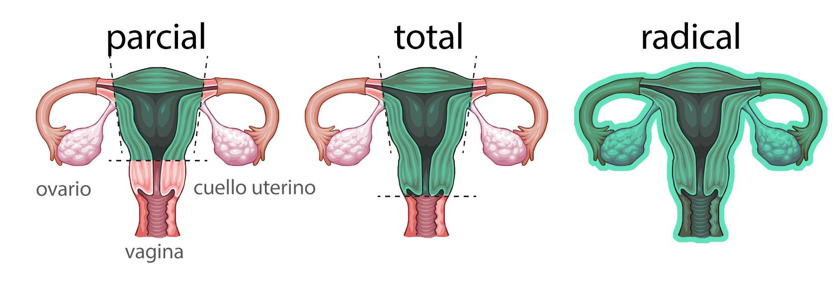 Por qué se debe realizar una histerectomía parcial o total